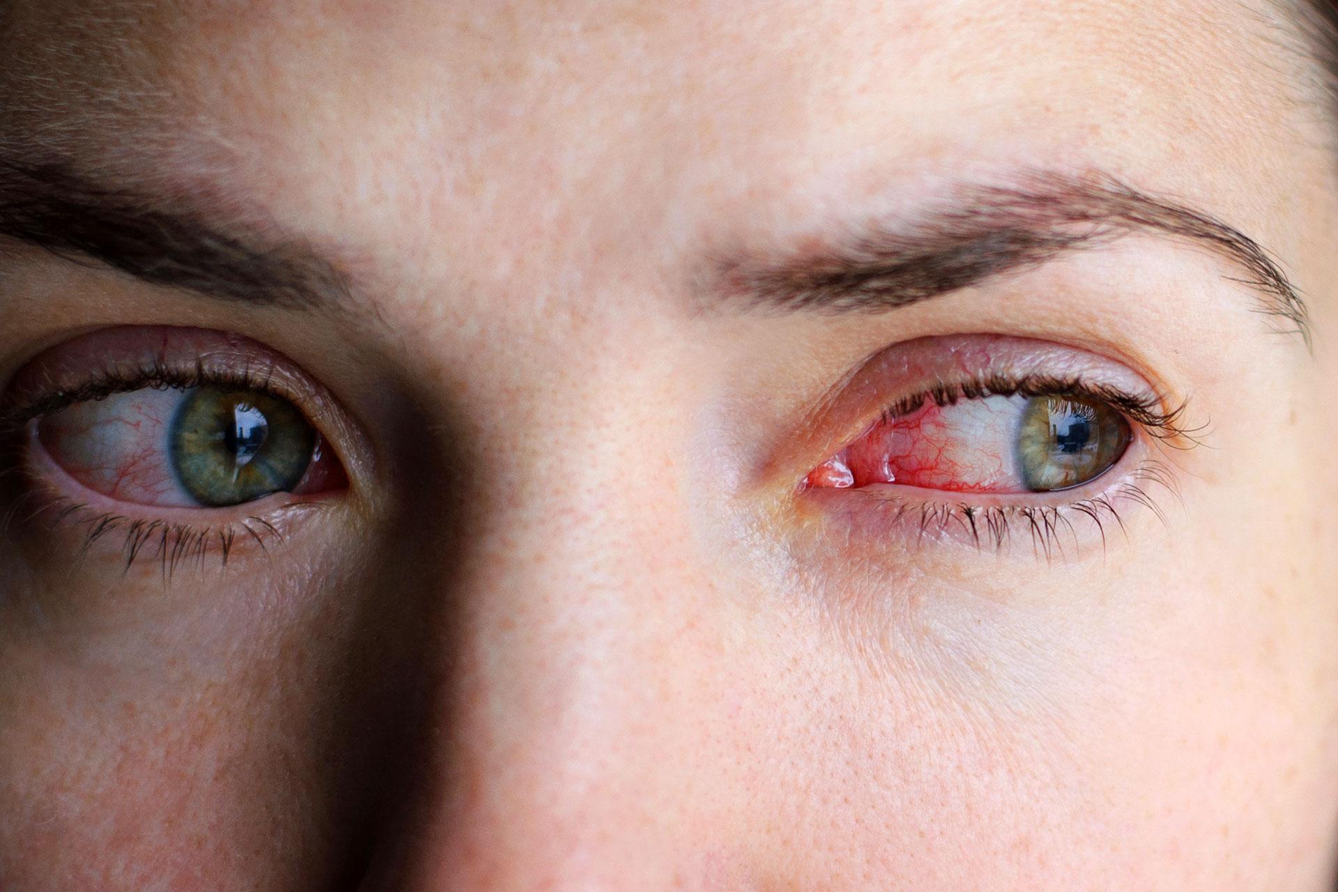 rødt irriteret øje